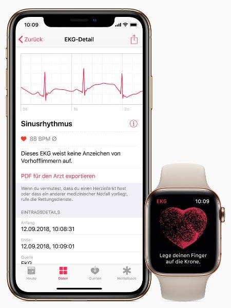 To UI της εφαρμογής ΗΚΓ (ηλεκτροκαρδιογραφήματος) στο Watch 4 και στο iPhone